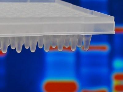 El perfil de actividad genética refuerza el papel de las inflamaciones en la enfermedad de Gaucher