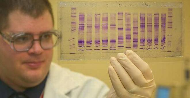 DNA Fingerprinting-Applications and Laws