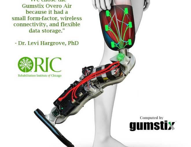 Des ordinateurs sur modules permettent la première jambe bionique sans chirurgie ou implants