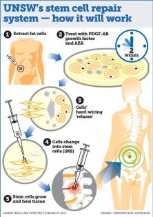 The new technique, which reprograms bone and fat cells into induced multipotent stem cells (iMS), has been successfully demonstrated in mice (Graphic: UNSW Media/Michael Whitehead).