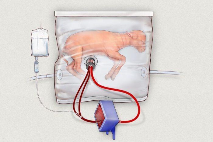 biobag utérus artificiel