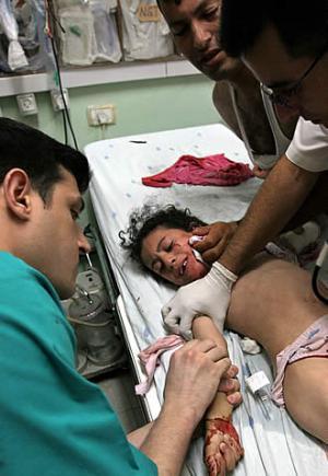 nina-herida-ataque-israeli-atendida.jpg
