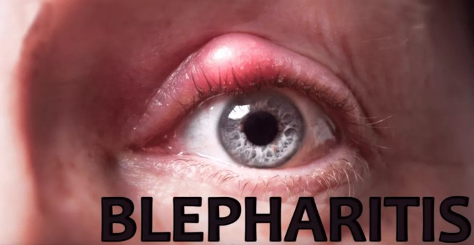 Blepharitis condition