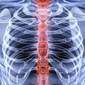 bone-osteoporosis-scan