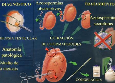 Anatomia patológica testicular
