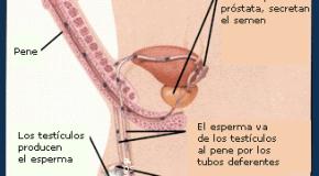 Obstrucción de los conductos al libre paso de los espermatozoides