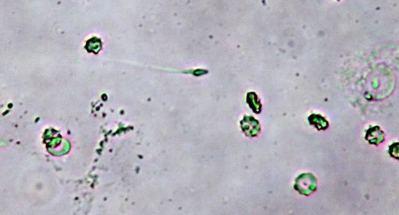 azzospermia