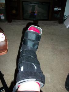 brokedy foot
