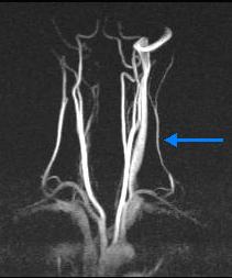 Левая позвоночная артерия малого диаметра лечение. Малый диаметр правой позвоночной артерии