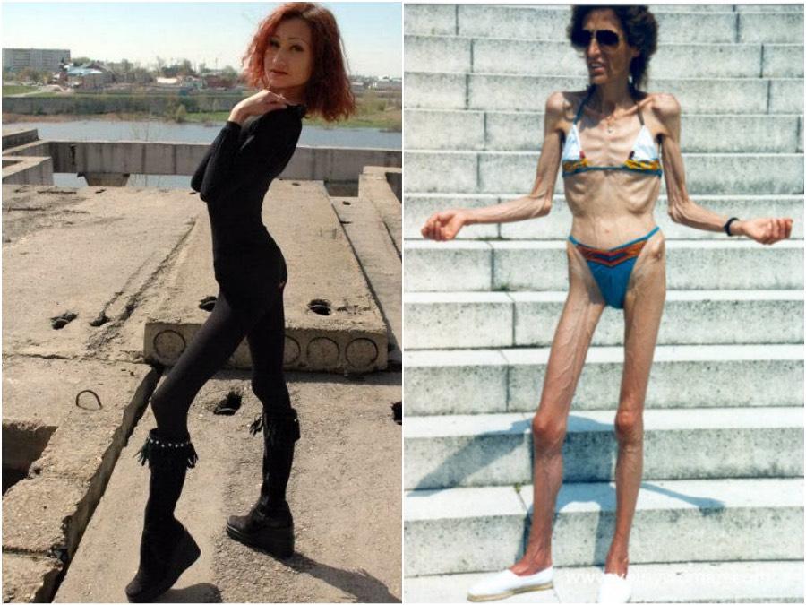 Anorexia után Képtelen fogyni anorexia után