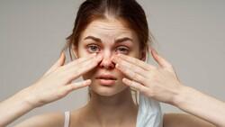 Sonbaharda alerjik reaksiyonlar gözü de etkiliyor