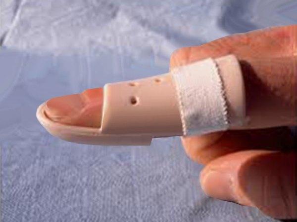Beyzbol parmağı nedir