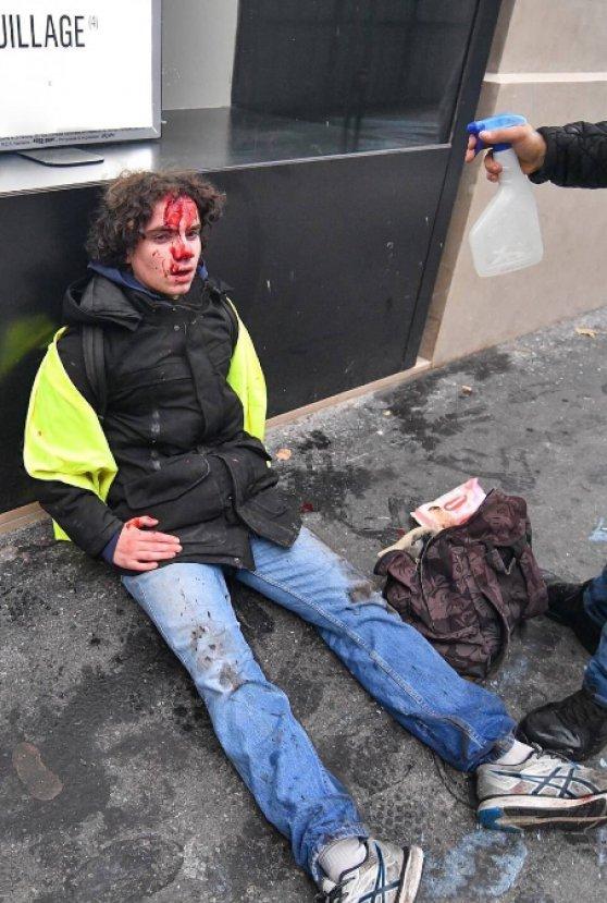 Fransa'da çatışmalar polis şiddetine dönüştü