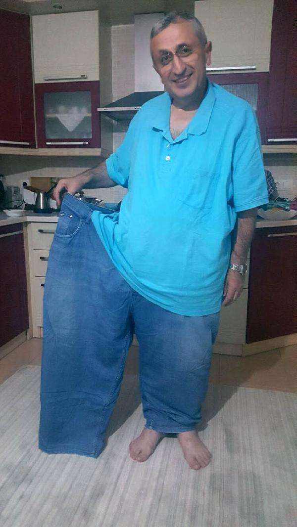 Tüp mide ameliyatıyla 99 kilo verdi