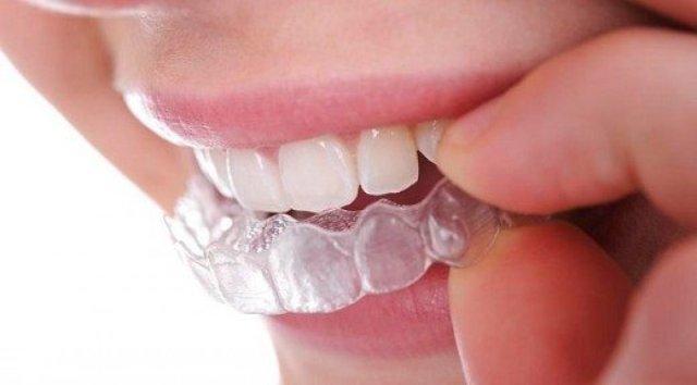 dis 1993 - Uykuda diş gıcırdatma sebepleri nelerdir? Diş gıcırdatma nasıl önlenir?