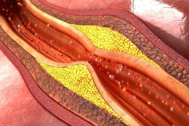 What is atherosclerosis #1