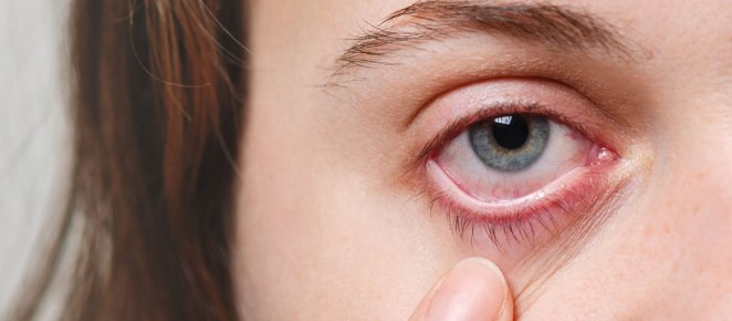 What is uveitis #2