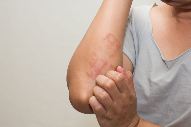 Extreme stress and anxiety trigger shingles #2
