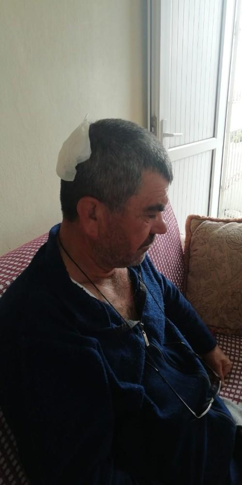 Tarsus'ta dinamit patlatılması sonucu 6 kişi yaralandı