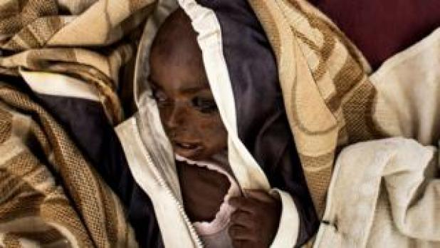 severely malnourished child in Tshikapa