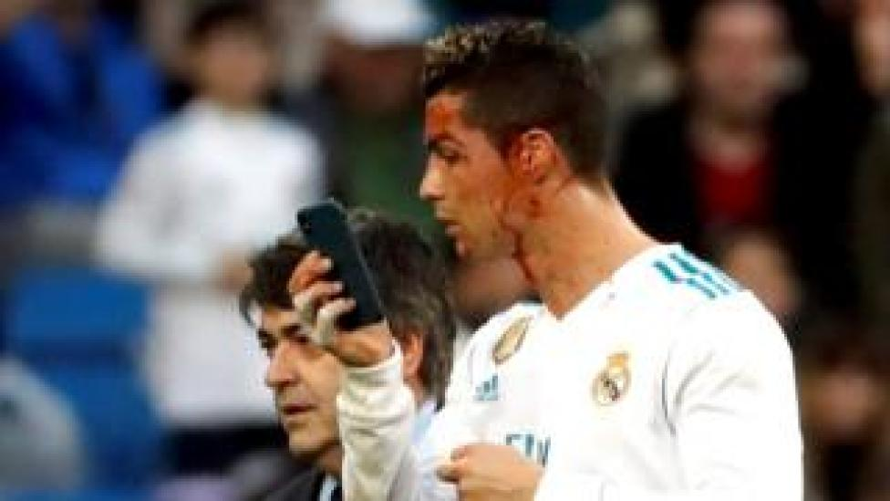 Cristiano Ronaldo checks his face in the front-facing camera of his attending physician's phone as he was led off the field