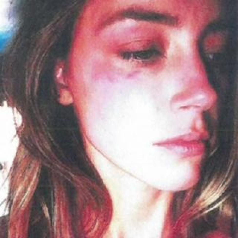 Amber Heard, shown in a photo with a bruised face