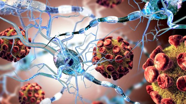 Nerve connections damaged in MS