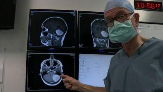 Henry Marsh mostrando el escáner de un tumor cerebral
