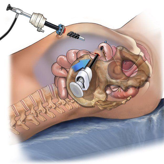 Arte de laparoscopia