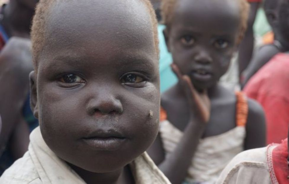Malnourished children in the Bentiu protection site