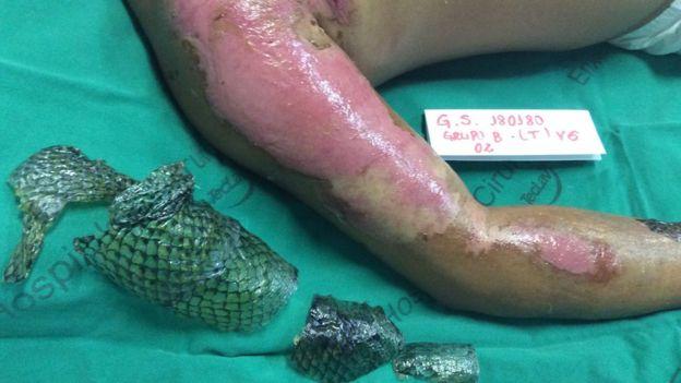 Quemaduras tratadas con piel de tilapia