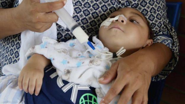 José Wesley, afectado por el virus del Zica, a los 16 meses de edad