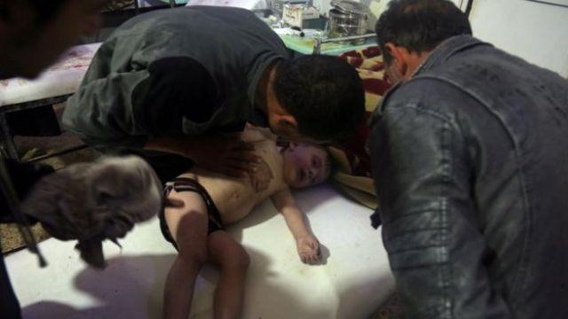 Criança recebe tratamento em hospital na Síria