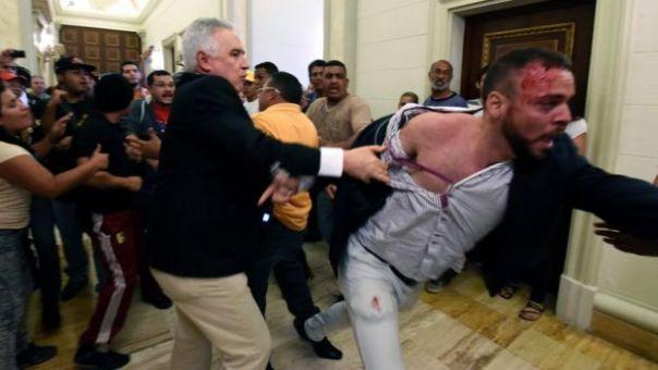 Una persona con una herida en la cabeza en el palacio legislativo