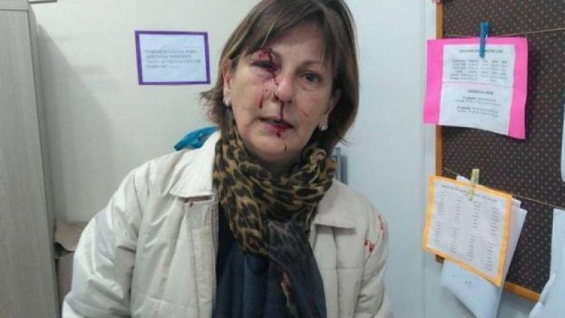 Professora Marcia Friggi após agressão em sala de aula