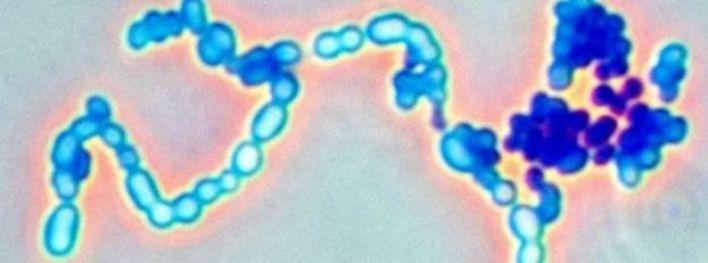 يسبب المرض نوع من البكتريا العقدية