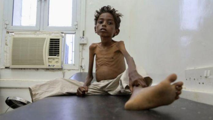Criança em hospital no Iêmen