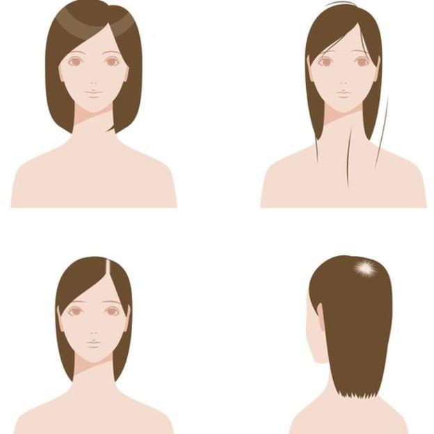 Desenho ilustra áreas mais comuns de falta de cabelo em mulheres