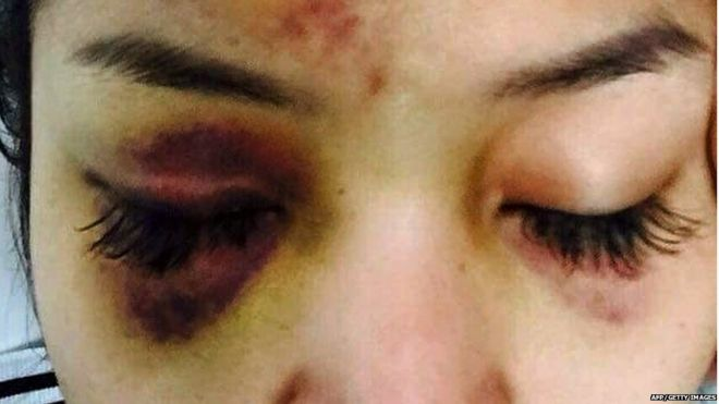 This recent undated handout photo released to AFP on July 16, 2015 shows a wound on the face of popular Cambodian television star Ek Socheata, better known by her stage name SaSa, who was attacked by a tycoon in Phnom Penh.