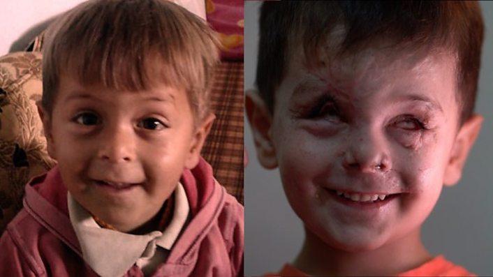 Syrian civil war: 'Three killed' in attack on Turkish convoy 1