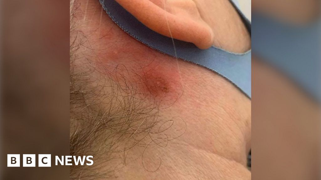 , Covid-19: New allergic reactions to hair dye reported, The Evepost BBC News