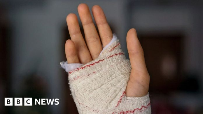 116766868 gettyimages hand
