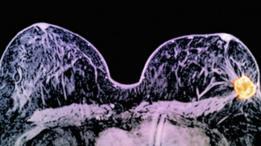 """Para los expertos, este hallazgo es un """"trampolín"""" para el tratamiento del cancer"""