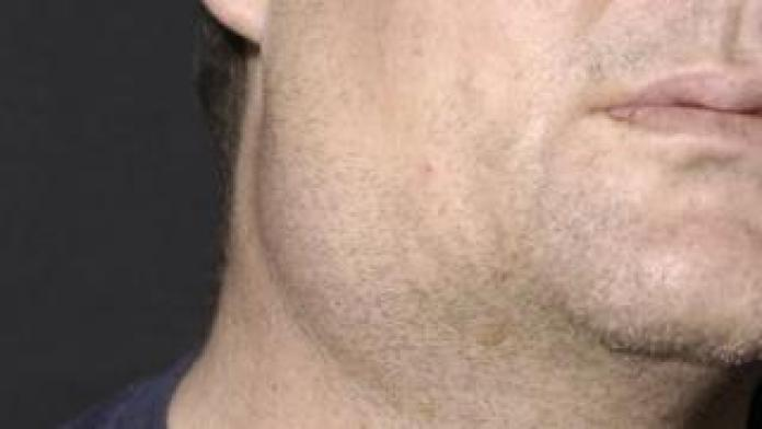 Mann mit den Mumps