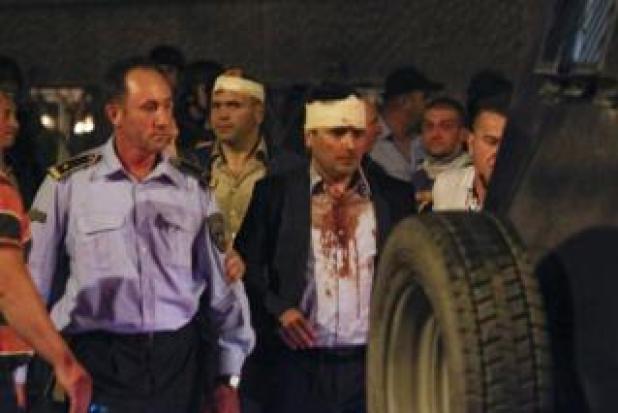 Macedonian police escorts injured members of the parliament including Social Democratic leader Zoran Zaev near the parliament in Skopje. Macedonia 27 April 2017.
