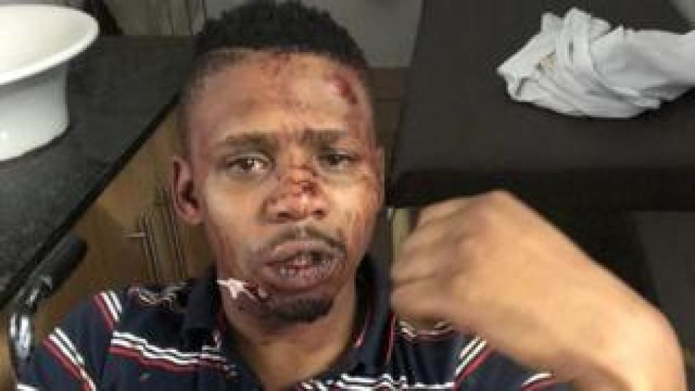 Samora Mangesi tweeted pictures of the injuries he sustained in the alleged assault