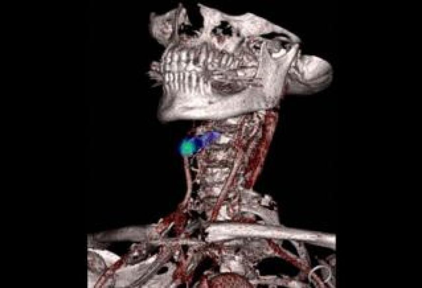 Detecting stroke - Nicholas Evans, University of Cambridge