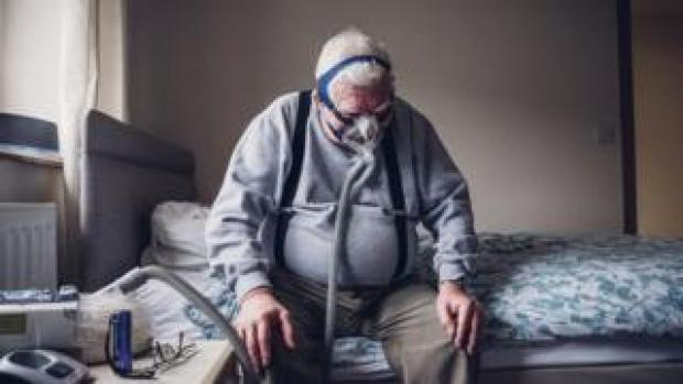 A man wearing a nasal sleep mask