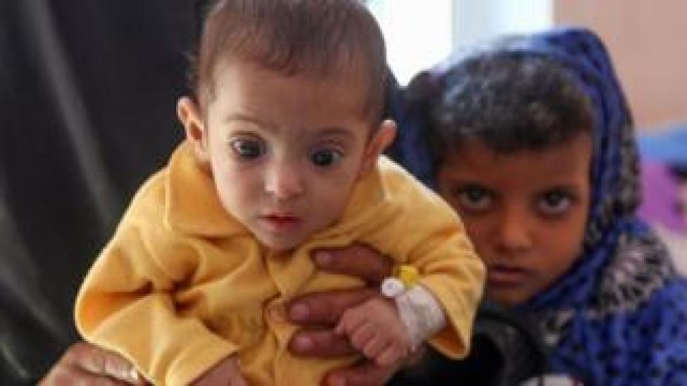 A child suffering from malnutrition in war-ravaged Yemen, 21 November