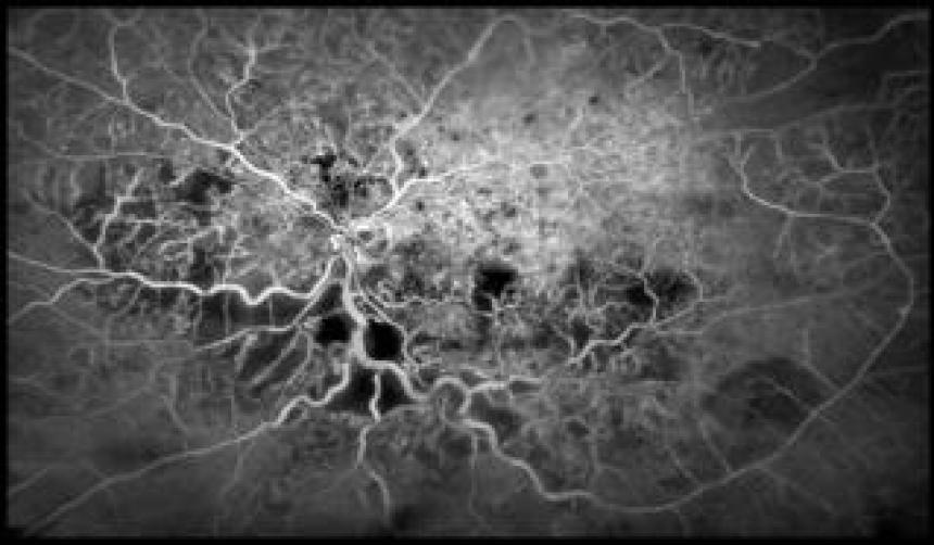 Blood vessels in the eye - Kim Baxter, Cambridge University Hospitals NHS Foundation Trust